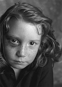 Ein blaues Auge oder blaue Flecken. Viele Dinge können auf Misshandlungen hindeuten und sollten von Bezugspersonen nicht leichtfertig abgetan werden